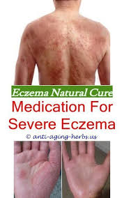 psoriasis vs eczema best cream to treat eczema - how to get rid of ...