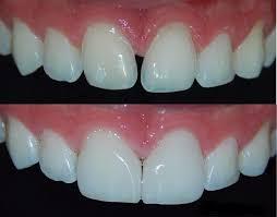 carillas dentales carillas dentales de porcelana sin envio a domicilio 7 000 00