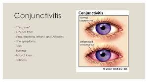 ciprofloxacin for conjunctivitis