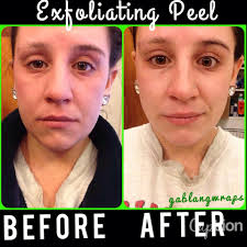 it works exfoliating peel before and after exfoliating peel from it works before and after yelp
