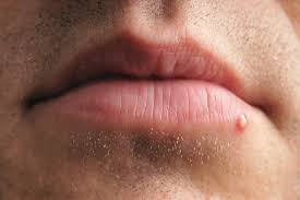 pimple or zit on the lips on the lip area of a person