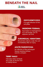 subungual hematoma