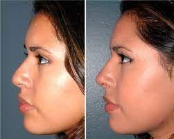 Is a nose job covered by insurance ? Estimating The Amount Of The Cost Of A Nose Job By Ridaul Arfiyanti Medium