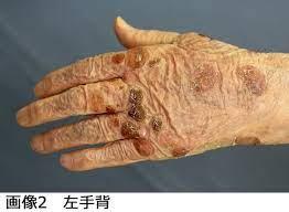 水疱 性 類 天 疱瘡