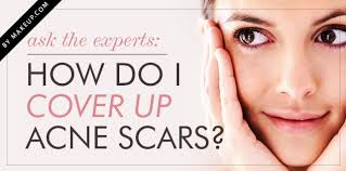 how to conceal acne scars