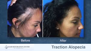traction alopecia hair loss balding