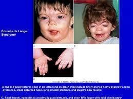 """Résultat de recherche d'images pour """"le syndrome de cornelia de lange therapie"""""""