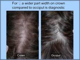 Female Pattern Hair Loss Enchanting Female Pattern Hair Loss YouTube
