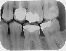 Image result for dental x ray