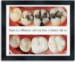 amalgam w copy wall art on wall art dental office with dental wall art smartpractice dental