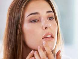cold sore vs pimple differences