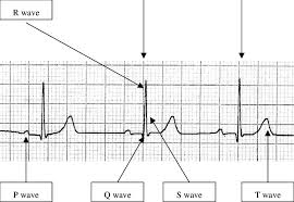 Ecg Chart Labeled The Normal Electrocardiogram With Component Waves Labelled
