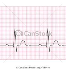 Illustration Of Medical Electrocardiogram Ecg On Chart Paper