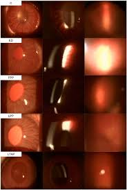 Anterior Lighting Slit Lamp Left And Middle Rows And Fundus Photos Right