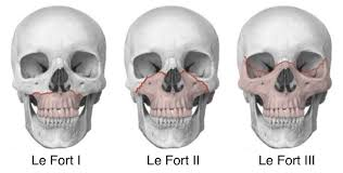 Le Fort Fracture Le Fort Fracture Definition Fracture Types And Symptoms