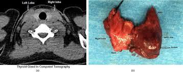 Thyroid Anatomy Thyroid Anatomy Intechopen