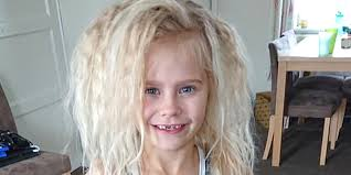 Uncombable Hair Syndrome Condition Gives Girl Unruly Mane