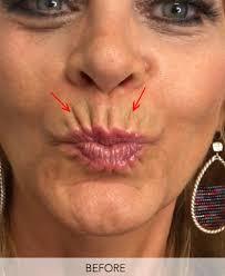 upper lips wrinkles skin perfect