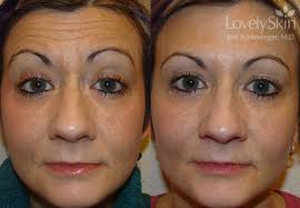 before and after 75cc botox 2 syringes of restylane and 1 syringe of