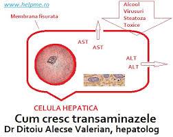 Transaminaze marite si hepatita consultatii hepatologie in Bucuresti