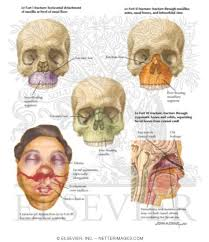 Le Fort Fracture Midface Fractures