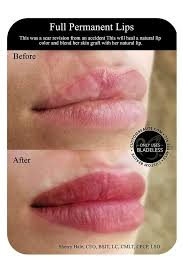 permanent lips in amherst new york