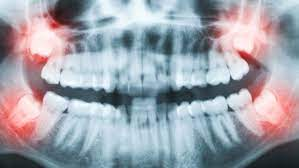 This can lead to a variety of problems. Should Your Teen S Wisdom Teeth Be Pulled Why Experts Disagree