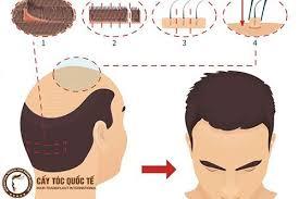 Cấy tóc tự thân FUE - Công nghệ trị hói an toàn, không phẫu thuật -  caytocquocte.com