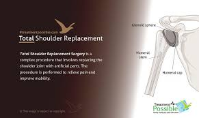 shoulder replacement surgery in india