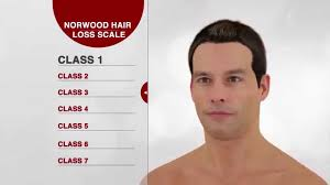 Norwood Hair Loss Scale For Men Hd