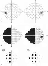 Visual Field Chart Interpretation Visual Fields Ento Key