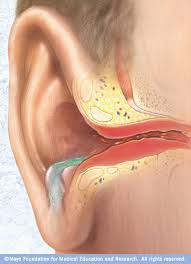 Image result for common indication of ear and nose infection would be the onset of a fever