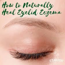 how to naturally heal eyelid eczema