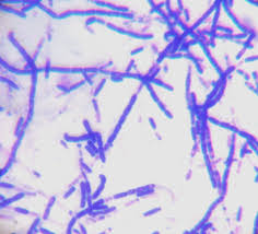 Gram Positive Bacilli How Can I Identify These Three Types Of Gram Positive Bacilli