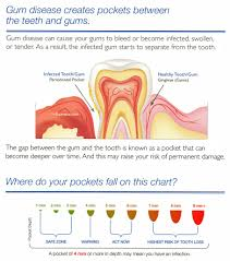 Dental And Periodontal Charting What Is Periodontal Charting Matthews Periodontics