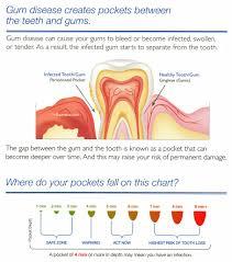 What Is Periodontal Charting Matthews Periodontics
