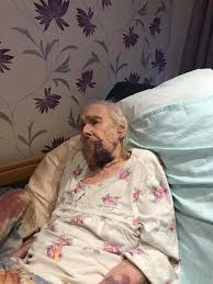 Probe after 98-year-old great-gran 'battered by resident' at care home -  Liverpool Echo
