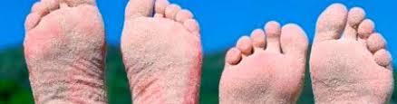 Jak Se Zbavit Plísně Na Nohou Vše Stihnucz