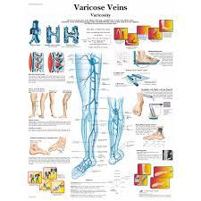 Leg Vein Chart Varicose Veins Chart
