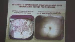mp Результаты применения продуктов coral club   to mp3 Результаты применения продуктов coral club в клинической практике