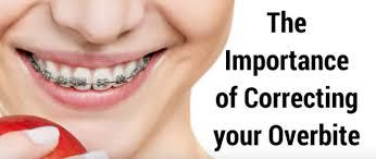 The Importance Of Correcting Your Overbite Bondi Dental