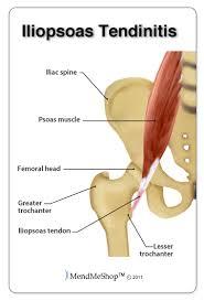 Image result for tendonitis