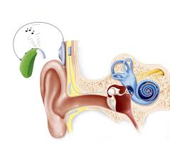 Image result for cochlear implant