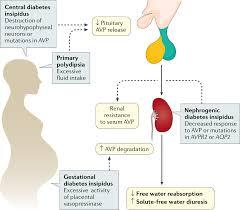 Siadh Vs Diabetes Insipidus Chart Diabetes Insipidus Nature Reviews Disease Primers