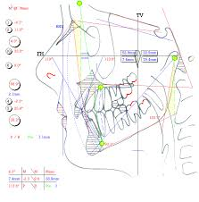 cephalometric gainesville tx triple o international bimler cephalometric analysis is based on headplate drawings that incorporate a greater number of anatomical features in this technique patients are not