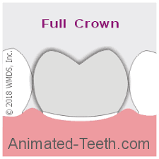 Image result for 3 – Tooth  Crowns