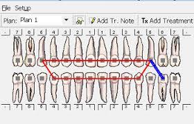 Ortho Tooth Chart Www Bedowntowndaytona Com