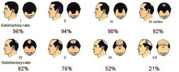 Male Pattern Boldness Stunning Male Pattern Baldness Do You Have These 48 Early Warning Signs