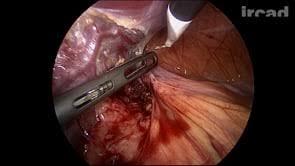 Resultado de imagen para esplenectomia laparoscopica
