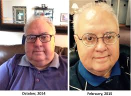 walter before and after gastric sleeve find a surgeon